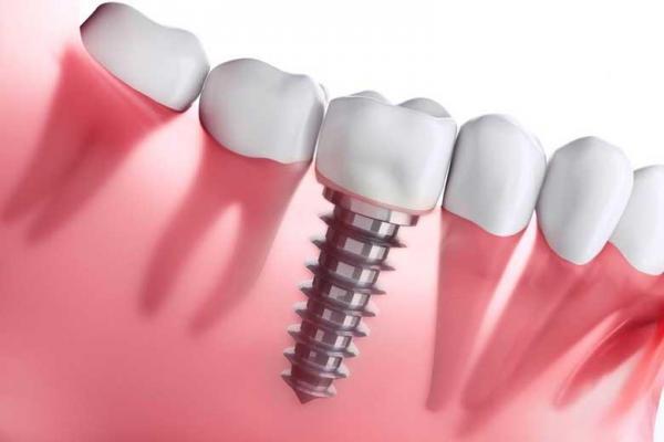 بعد از انجام عمل جراحی ایمپلنت چگونه از جایگزین دندان هایمان به درستی حفاظت کنیم؟